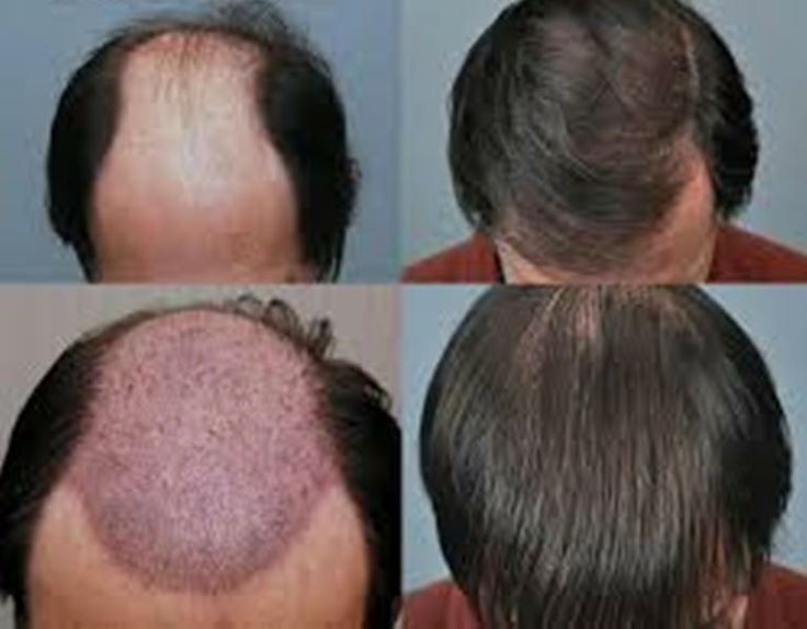 Synthetic hair transplant cost in delhi